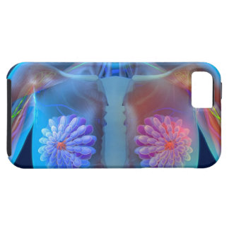 Computer artwork representing breast cancer, iPhone 5 cover