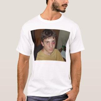Corey with black eye T-Shirt