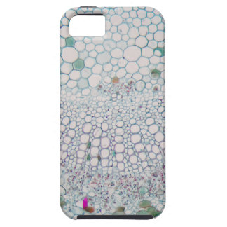 Cotton leaf under the microscope iPhone 5 case