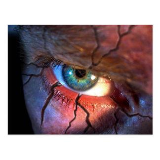Cracked Eye Postcard