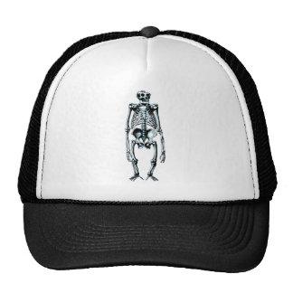 dead gorilla skeleton trucker hat