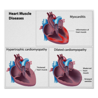 Diseases of the Heart Muscle Poster