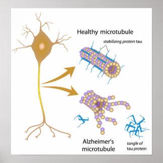Disintegrating microtubules in Alzheimer s Poster