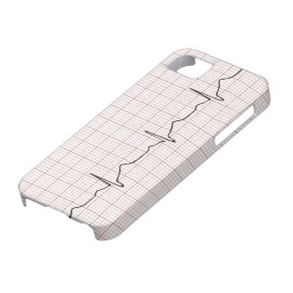 EKG heartbeat on graph paper, PhD (doctor) pulse iPhone 5 Cover