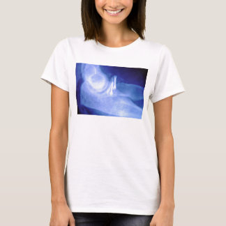 Elbow xray with screws T-Shirt
