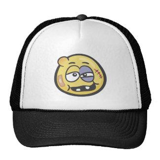 Emoji: Beat Up Face Trucker Hat