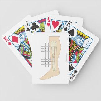 External Fixator Poker Deck