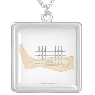 External Fixator Silver Plated Necklace