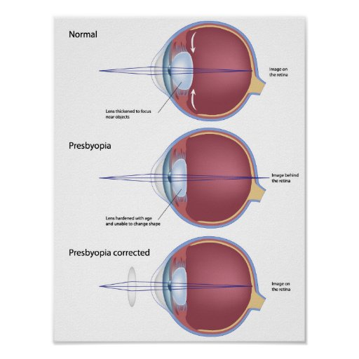 Eye defect presbyopia Poster
