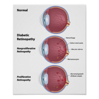 Eye disease Diabetic retinopathy Poster