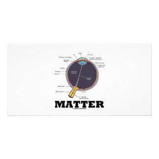 Eye Matter Anatomical Humor Picture Card