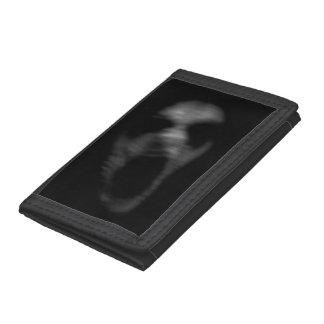 Falln Mental Disturbances Tri-fold Wallets