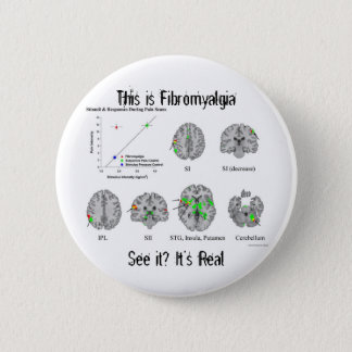 Fibromyalgia is real. fMRI proof 2 Inch Round Button