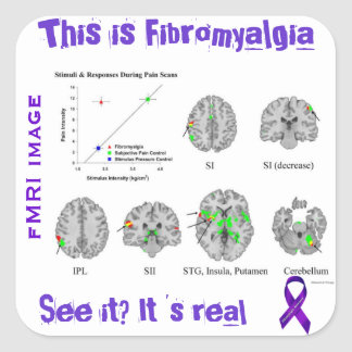 Fibromyalgia is real. You can see it on an fMRI Square Sticker