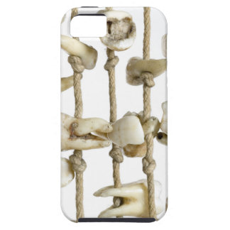 Funny Dental Photography Extracted Teeth Dentist iPhone 5 Cover