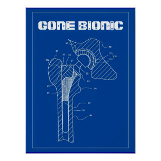 GONE BIONIC - Hip Replacement Poster