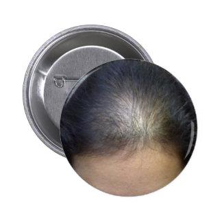 Hair T Pins