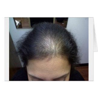Hair T Card