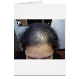 Hair T Greeting Card
