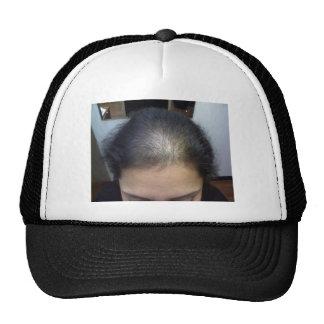 Hair T Hat