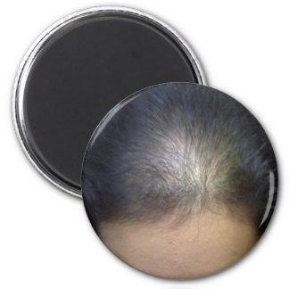 Hair T Magnet