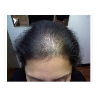 Hair T Postcard