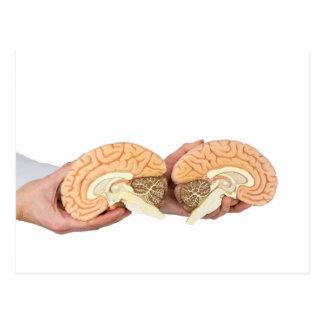 Hands holding model human brain on white postcard
