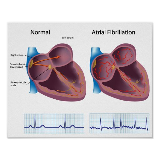 Heart disease atrial fibrillation Poster
