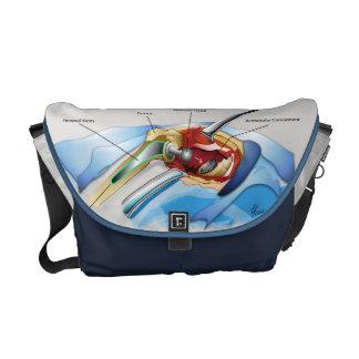 Hip Replacement Infographic Messenger Bag (Medium)