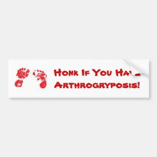 Honk If You HaveArthrogryposis! Bumper Sticker