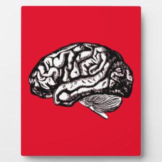 human brain plaque