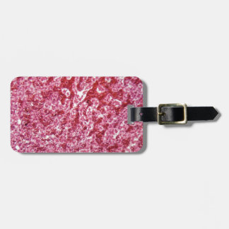 Human liver cells with cancer luggage tag
