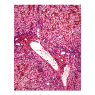 Human liver cells with cancer under the microscope letterhead template