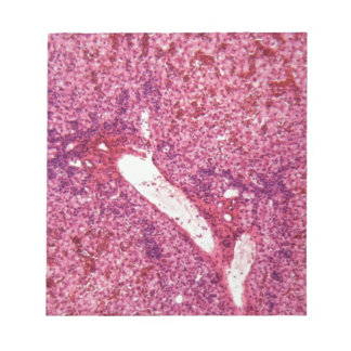 Human liver cells with cancer under the microscope notepad