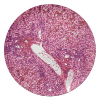 Human liver cells with cancer under the microscope plate
