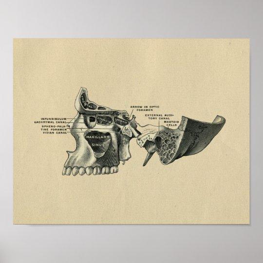 Human Skull Sinuses Anatomy 1902 Vintage Print