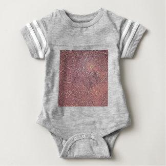 Human spleen with chronic myelogenous leukemia baby bodysuit