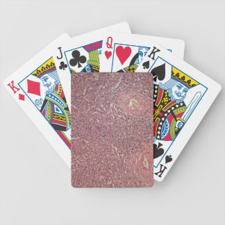 Human spleen with chronic myelogenous leukemia bicycle playing cards
