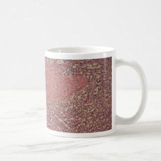 Human spleen with chronic myelogenous leukemia coffee mug