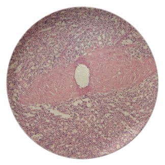 Human spleen with chronic myelogenous leukemia dinner plates
