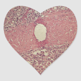 Human spleen with chronic myelogenous leukemia heart sticker