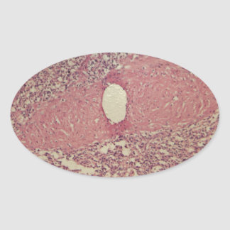 Human spleen with chronic myelogenous leukemia oval sticker