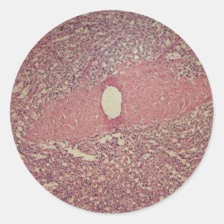 Human spleen with chronic myelogenous leukemia round sticker