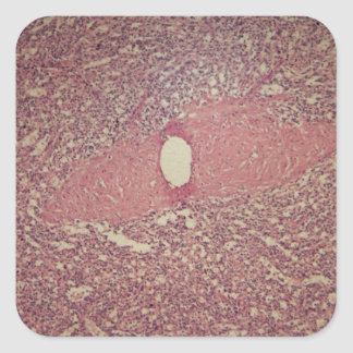 Human spleen with chronic myelogenous leukemia square sticker