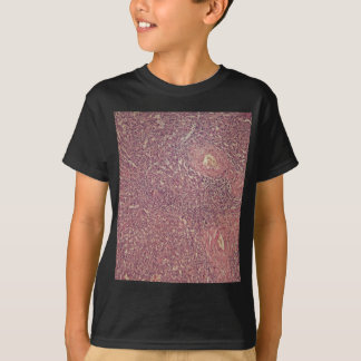 Human spleen with chronic myelogenous leukemia T-Shirt