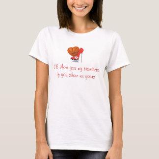 I'll show you my brackets.... T-Shirt