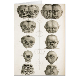 Infant Skull Deformities Weird/Conjoin Baby Card