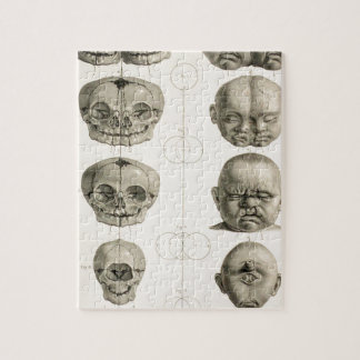 Infant Skull Deformities Weird/Conjoin Baby Puzzle