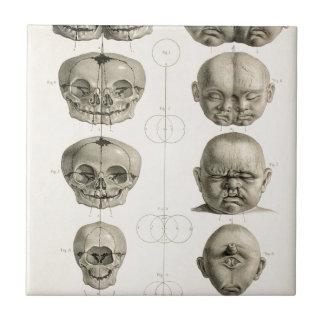 Infant Skull Deformities Weird/Conjoin Baby Tiles