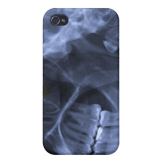 iphone 4 - Jaw X-ray (left handed) Blue iPhone 4 Case